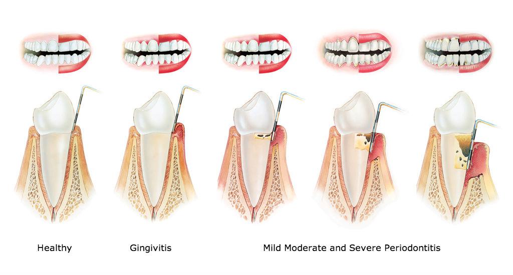 Healthy, Gingivitis, Periodontitis